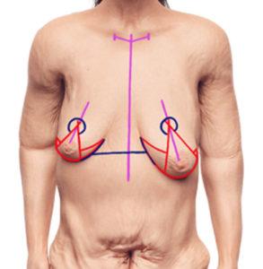 Brustvergrößerung Ohne Op Erfahrungsberichte