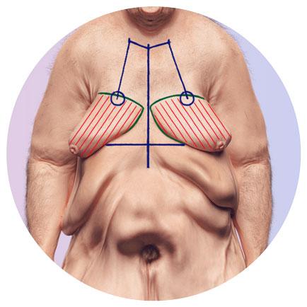 Brustwandkorrektur und Brustwandstdaffung beim Mann nach Gewichtsabnahme
