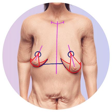 Brustangleichung und Bruststraffung nach Gewichtsverlust