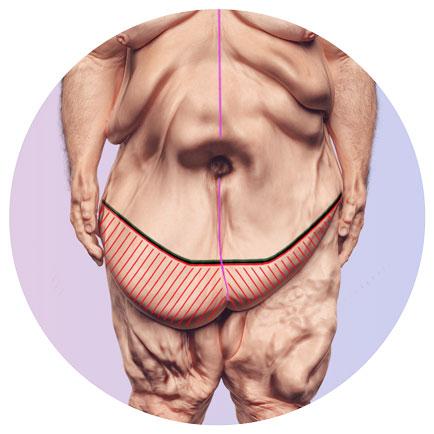 Entfernung einer Fettschürze nach Gewichtsabnahme