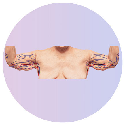 Oberarmstraffung nach Gewichtsabnahme